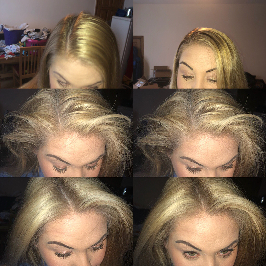 Step By Step Before After Greasy Hair
